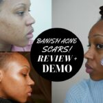 How to banish Acne scars! Banish starter kit Review + Demo